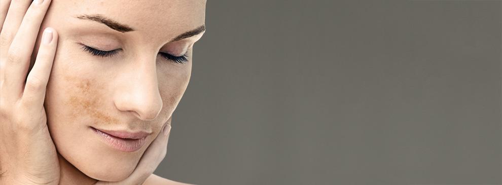 cambios de la pigmentacion en el embarazo
