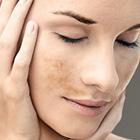 la piel cambia su color natural en el embarazo